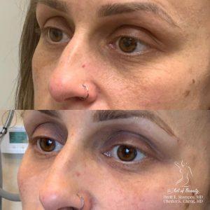 Under Eye Rejuvenation