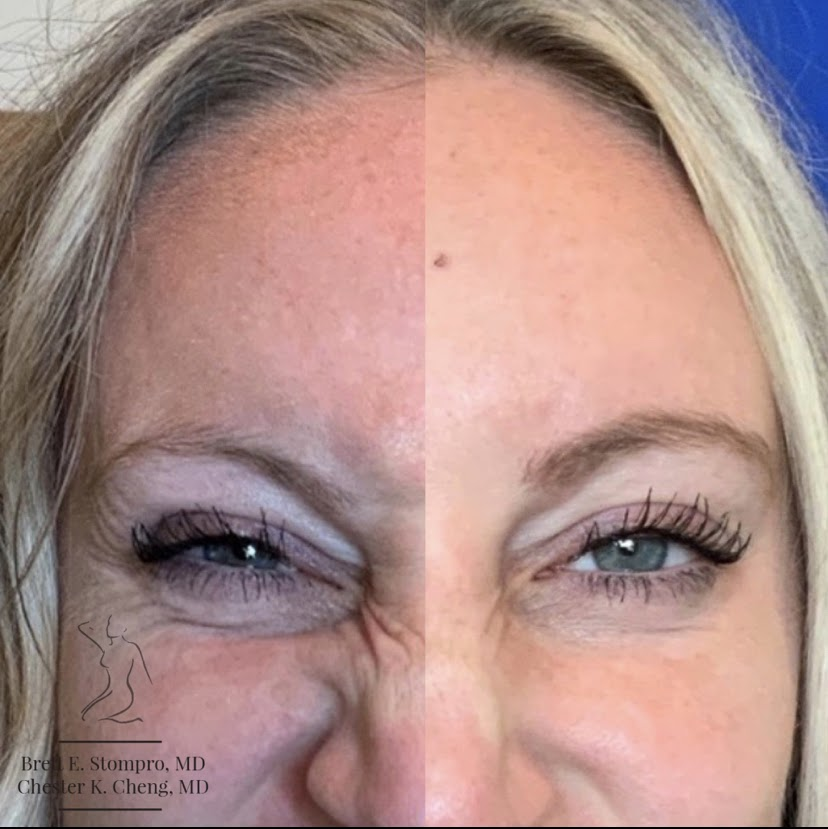 Botox for Bunny Lines - Wrinkles on the Nose