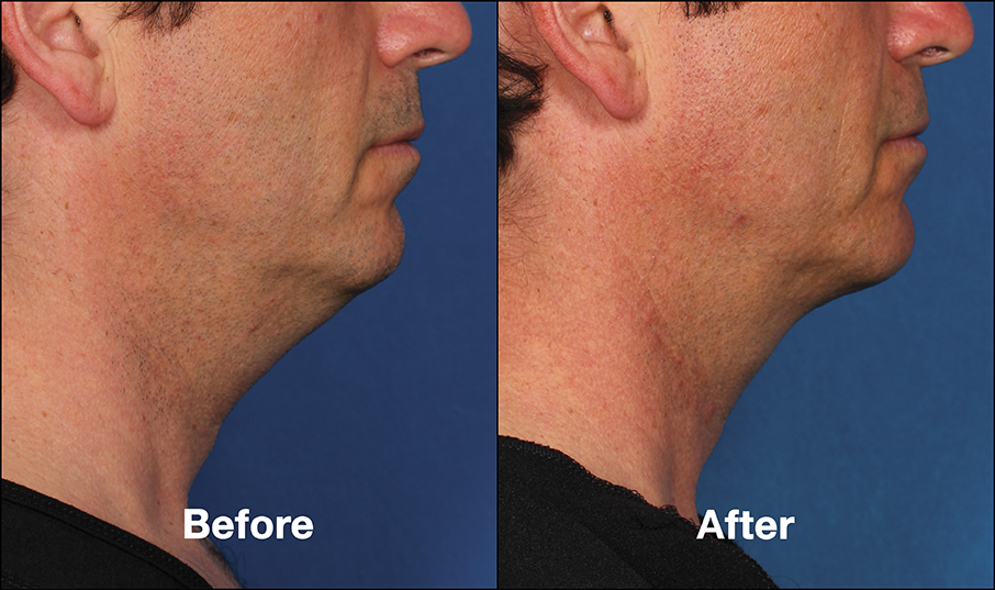 Kybella Patient PRI8 Before After (Side View)