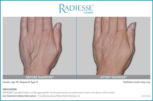 Radiesse Hands Patient Age 49