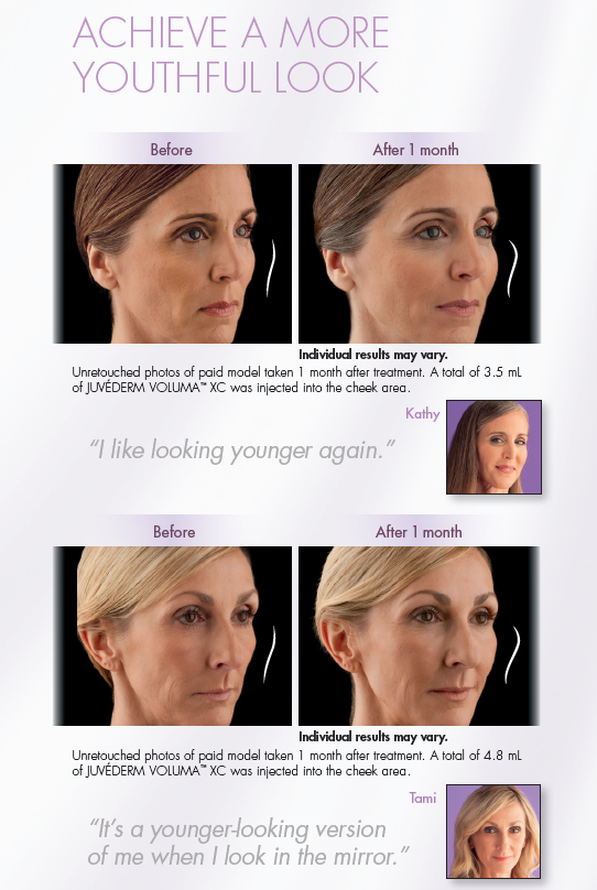 Voluma Juvederm Before and After