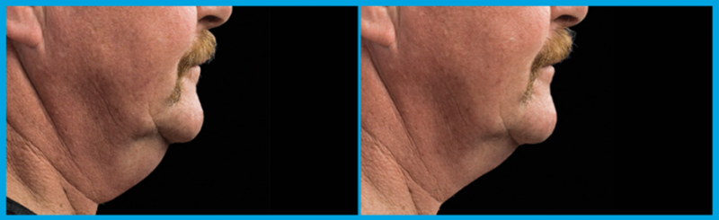coolsculpting of the chin