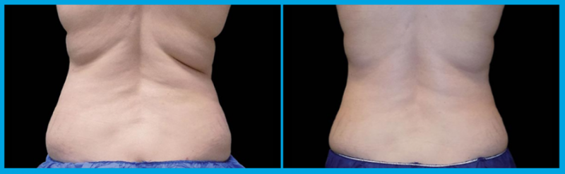 coolsculpting of the flanks 2