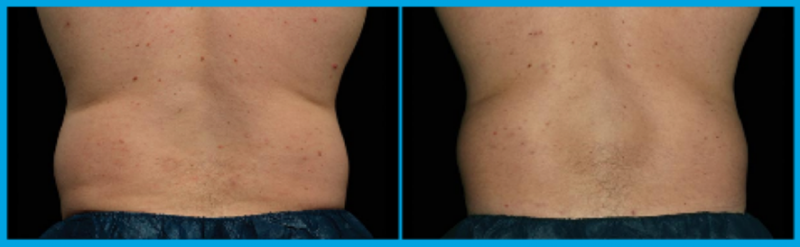 coolsculpting of the flanks