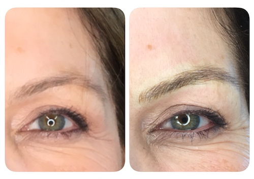 Microblading Before and After Image 2