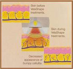 Velashape Image 1